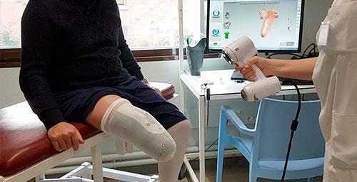 scan 3d prothèse